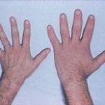 hypofysen hender