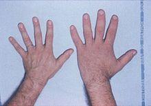 forstørret skjoldbruskkjertel symptomer